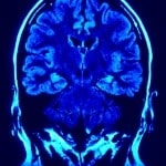 Brain Injury - PLR Articles